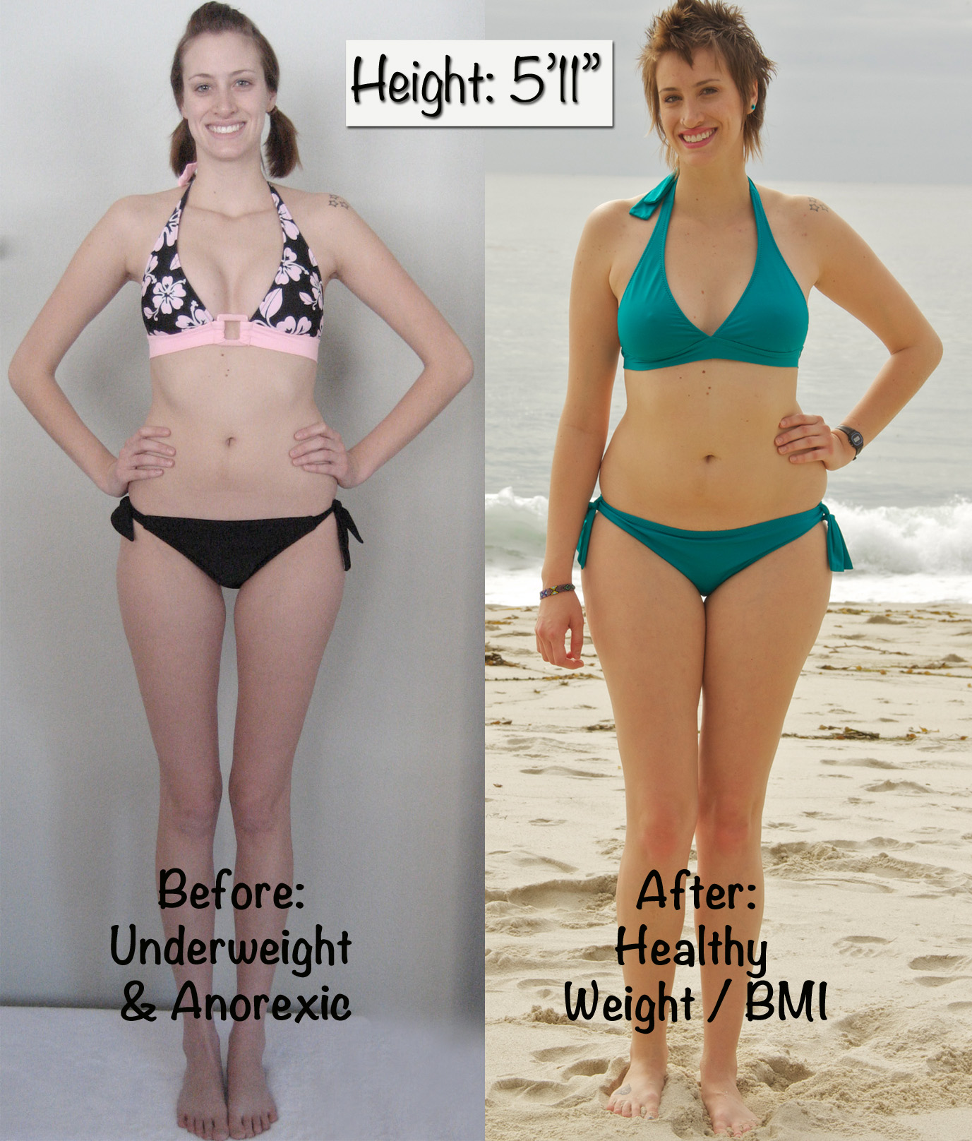 bulimia before and after recovery images amp pictures   becuo