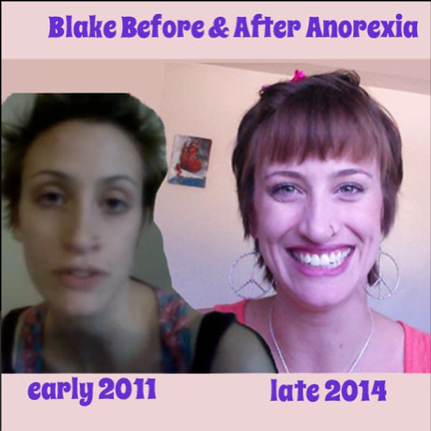 Blake Before & After Anorexia Face