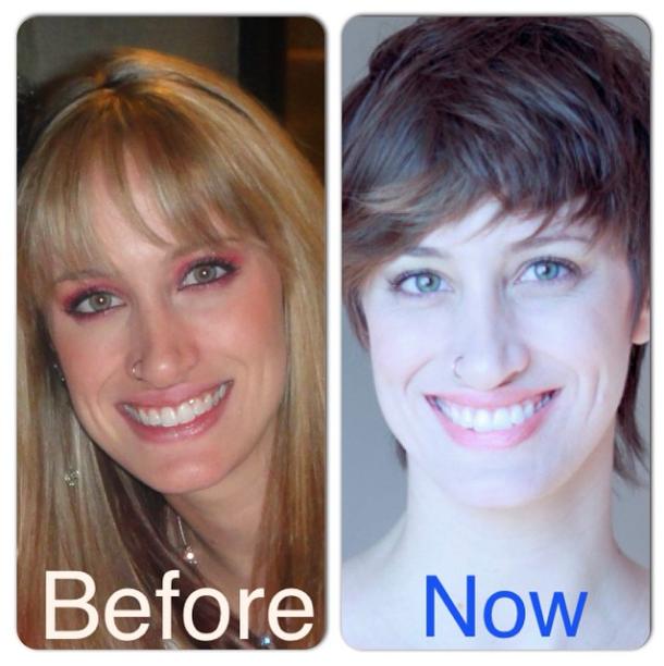 Blake before & after eating disorder blonde