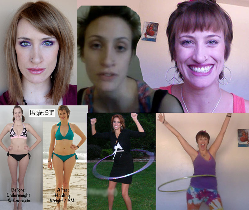 Blake-Before&After-anorexia-collage-4pics-square